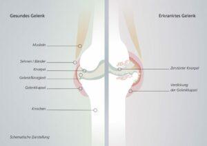 Gesundes Gelenk vs. Krankes Gelenk